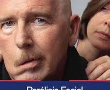 6 cosas que detonan parálisis facial