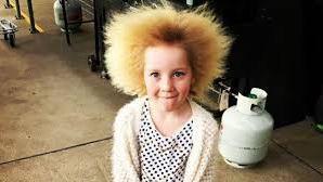 Síndrome del cabello impeinable, ¿lo podrías tener?