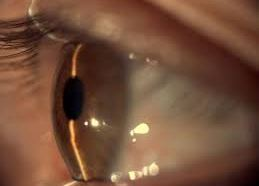 Tener un familiar con glaucoma aumenta ocho veces riesgo de…
