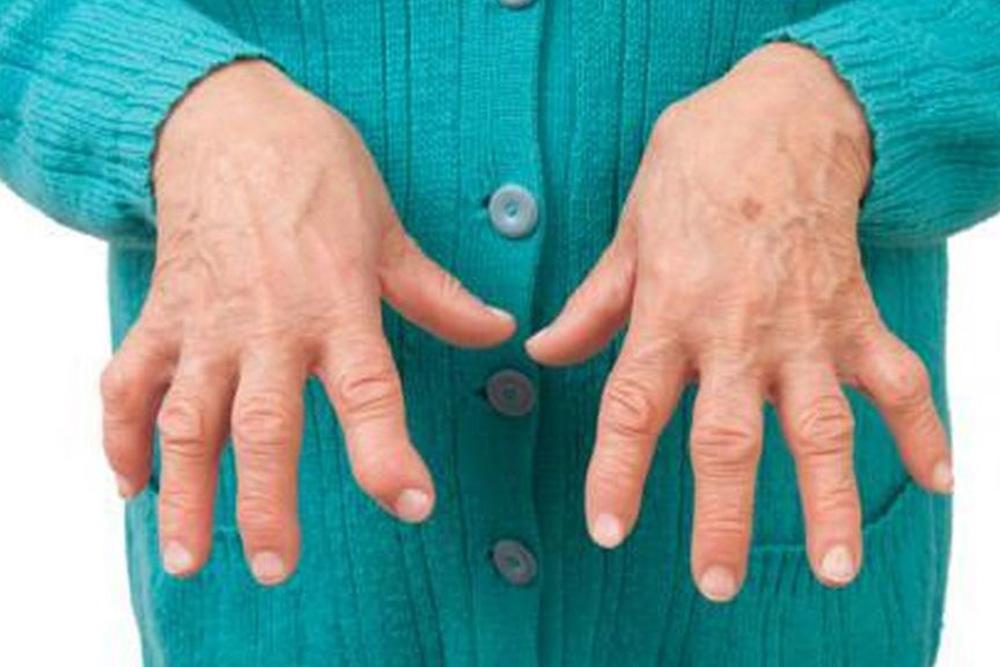 Darán charlas informativas sobre características y prevención de artritis reumatoidea