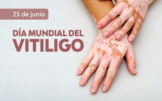El 25 de junio es el Día Mundial del Vitiligo