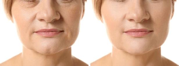 ANTIENVEJECIMIENTO: Nuevas Soluciones Contra las Arrugas