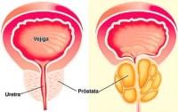 Cancer de Prostata y Sus Distintas Formas de Tratamiento