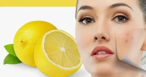 Resultado de imagen para limon para acne