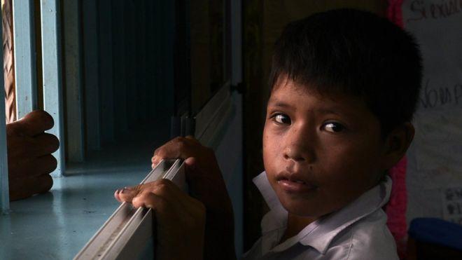 La alarmante reaparición de la difteria en Venezuela