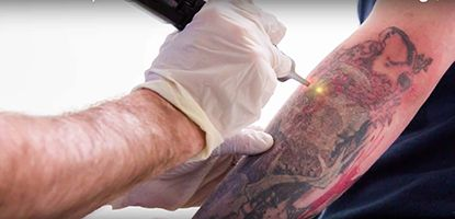 Tattoo Removal : Options and Results