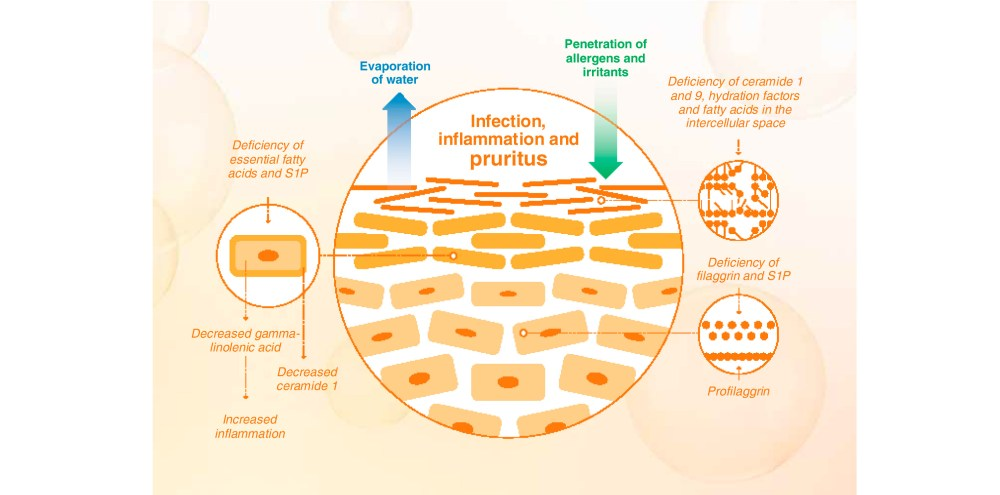 medium resolution of the skin barrier disorder leads to skin dryness which exacerbates the pruritus and facilitates the penetration of environmental and microbiological