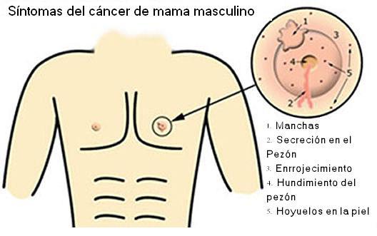 Dibujo de un torso indicando Síntomas cáncer mama masculino