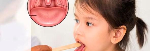 Amigdalitis En La Infancia Remedios Caseros