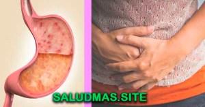 Remedios Caseros Para Gastritis Crónica Severa