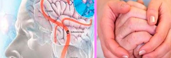 Consecuencias Del Mal De Parkinson