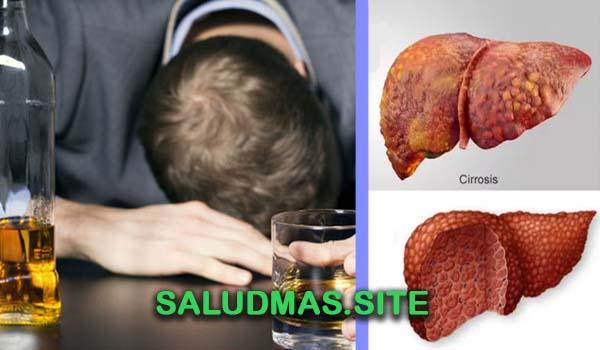 Enfermedades Que Causa El Alcohol