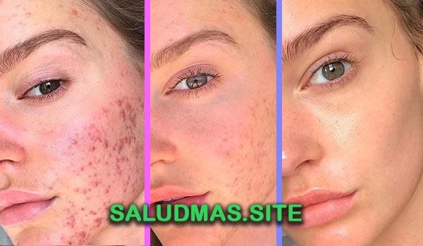 remedios caseros para el acne con plantas medicinales