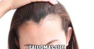 Alopecia En Mujeres Jóvenes