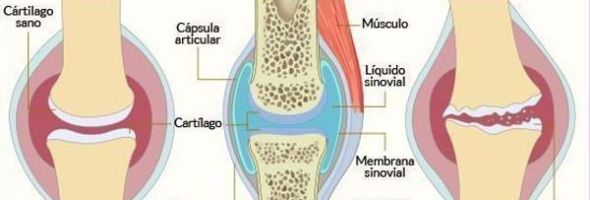 medicamento para regenerar cartilago en rodilla