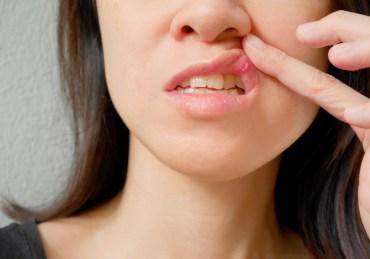 Remedios caseros para curar las llagas en la boca