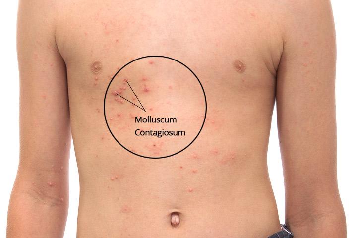 La última solución de remedios caseros de Molusco contagioso: 15 tratamiento