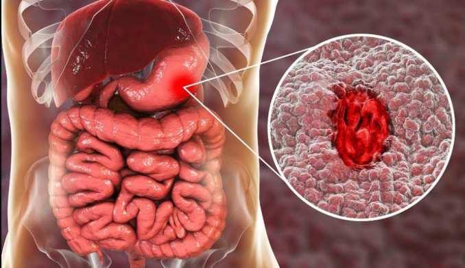 Úlcera estomacal: la ranitidina es un medicamento que alivia los síntomas de las úlceras estomacales