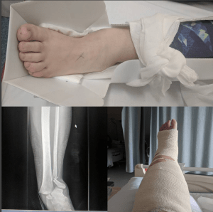broken ankle, x-ray and cast