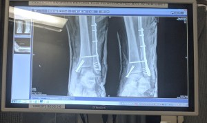 xray of plate and bolts after the first surgery