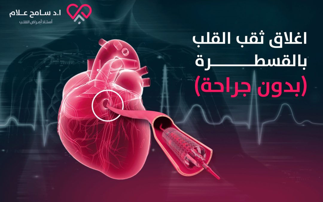 اغلاق ثقب القلب بالقسطرة (بدون جراحة) 2021