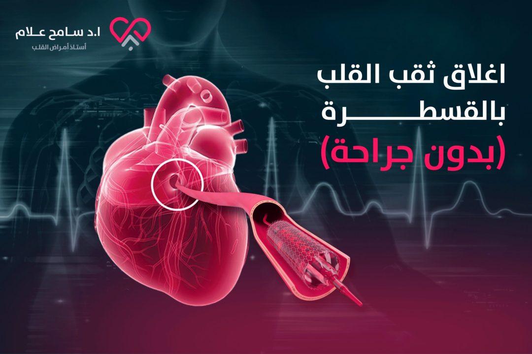 اغلاق ثقب القلب بالقسطرة