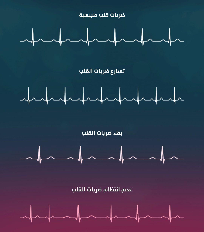 علاج عدم انتظام ضربات القلب