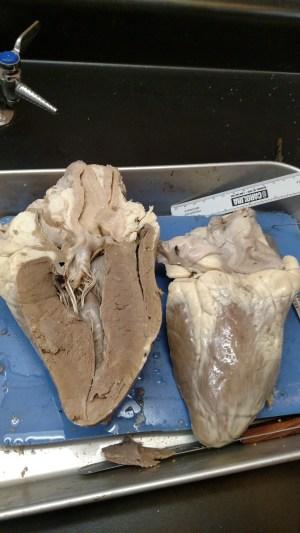 Sammi's Anatomy and Physiology Blog