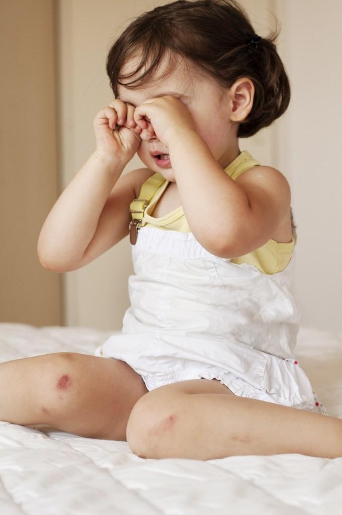 acidentes oculares