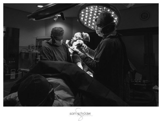 Birth-Photography_Gauteng_C-Section-Birth-Photography_0084ST