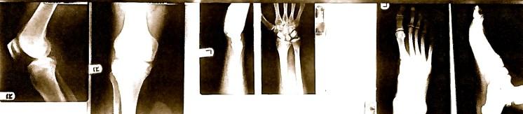Tom Trevino X-Rays