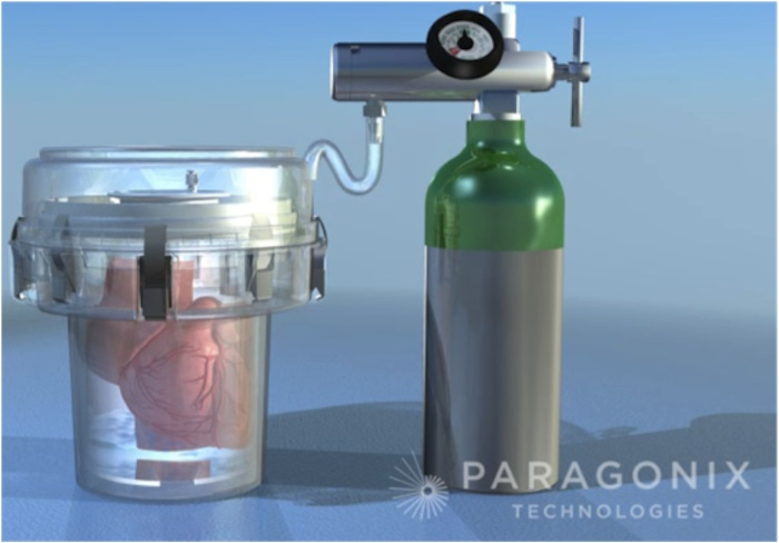 Rendering of the Paragonix Sherpa Organ Transport System. Courtesy image.