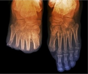 A diabetic, half-foot amputation which usually follows initial toe amputations by 12-24 months. Image courtesy of Metro Health.