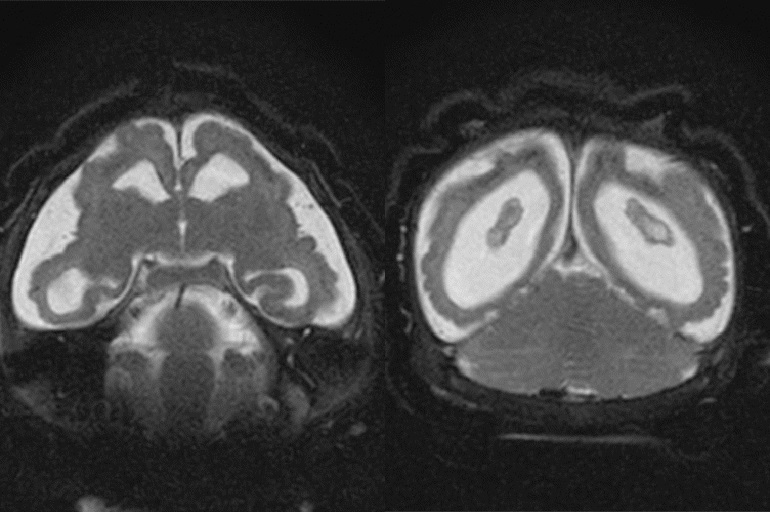 Scan of an infant brain affected by the Zika virus. Image courtesy of the Radiology Journal.