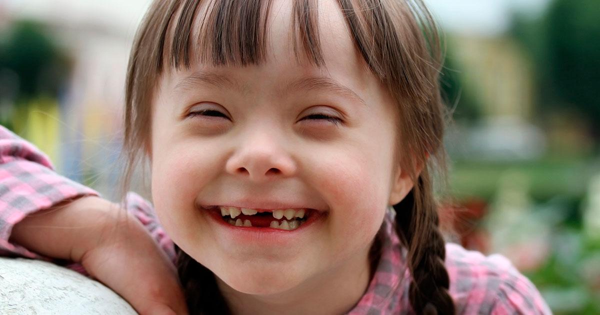Cada año, en promedio, nacen 15 sancarleños con Síndrome de Down