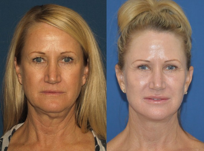 facelift before and after photos san diego