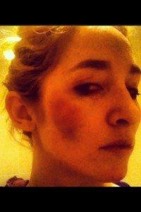 Kyla Ebbert Bruises