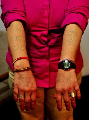 Photos of Mari's scarred arms by Brooke Binkowski.