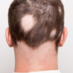 New drugs in the treatment of alopecia areata