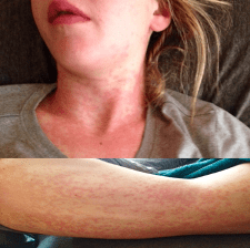 Petechial rashes after Gardasil