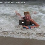 before after gardasil