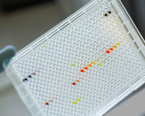 Cancer cell lines being tested with different anti-cancer drugs