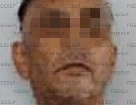 Hombre acusado de lesiones calificadas es detenido por la FGE en Tamasopo