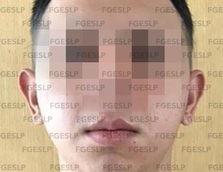 FGE obtiene prisión preventiva para acusado de un homicidio en cerro de san pedro