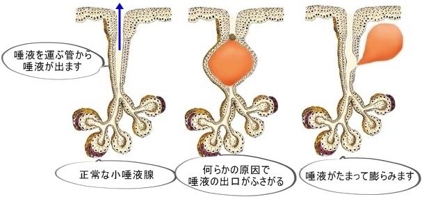 粘液のう胞とは