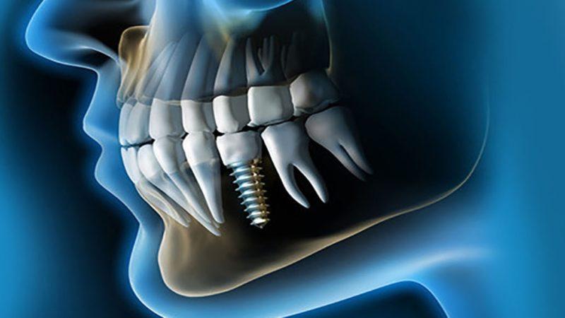 Ventajas y Desventajas De Los Implantes Dentales 14