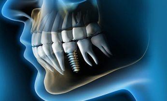 Ventajas y Desventajas De Los Implantes Dentales 11