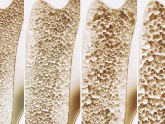 7 Súper Alimentos Para Prevenir La Osteoporosis 43