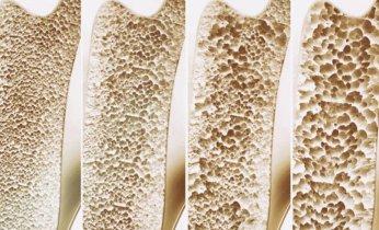 7 Súper Alimentos Para Prevenir La Osteoporosis 2