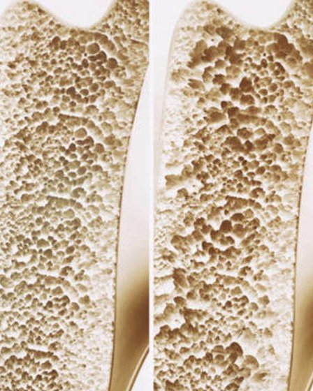7 Súper Alimentos Para Prevenir La Osteoporosis 12